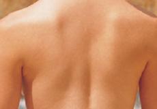 什麼是深層減痛埋線